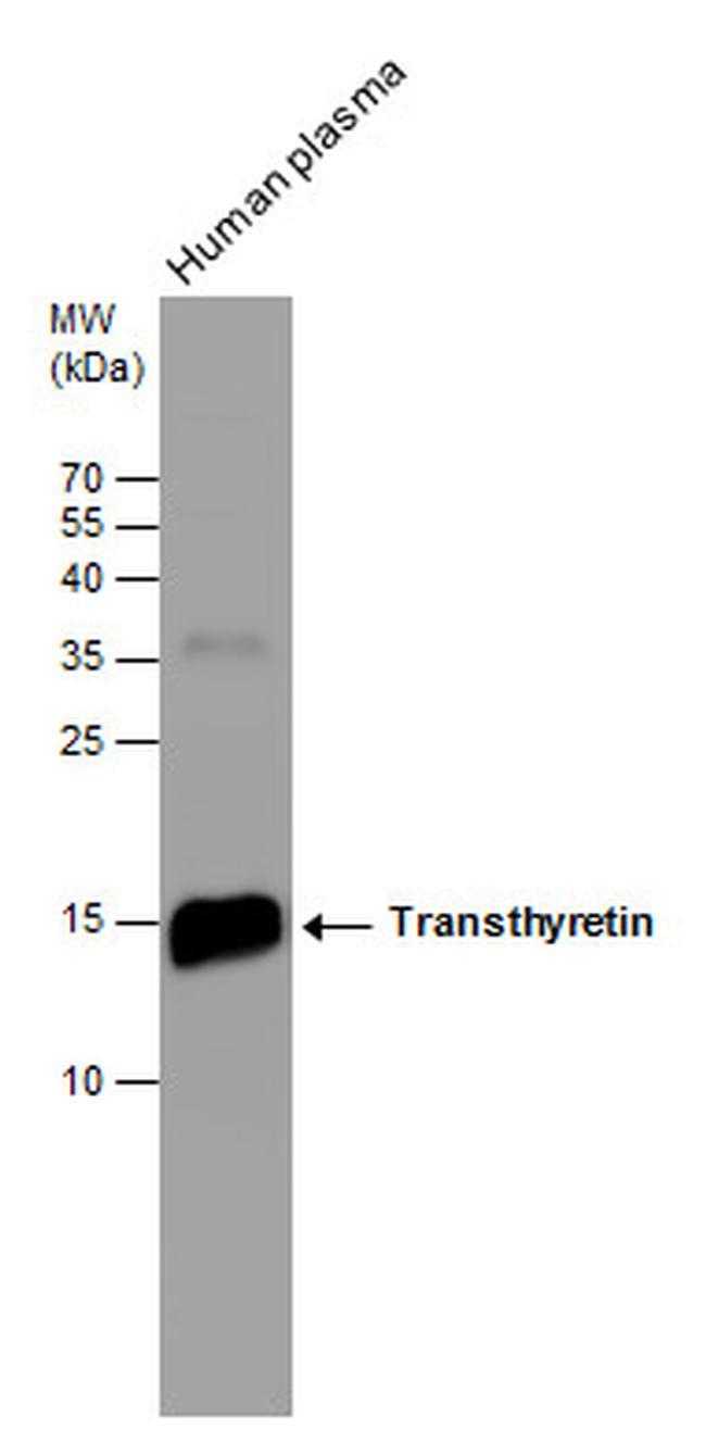 Transthyretin Antibody (PA5-27220)