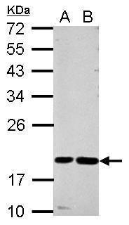 Cystatin F Antibody (PA5-27227) in Western Blot