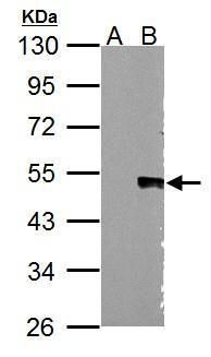 WNT5A Antibody (PA5-27230) in Western Blot