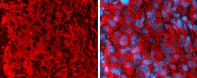 Vimentin Antibody (PA5-27231) in Immunohistochemistry (Frozen)