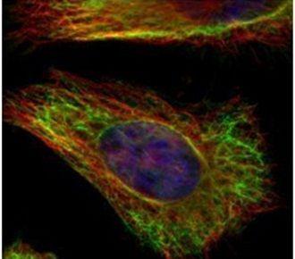 Vimentin Antibody (PA5-27231) in Immunofluorescence