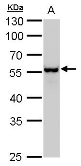 Vimentin Antibody (PA5-27231) in Western Blot