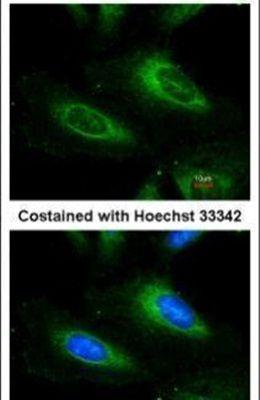 SOD1 Antibody (PA5-27240)