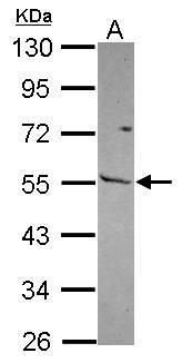 MMP13 Antibody (PA5-27242) in Western Blot