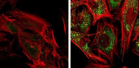 SQSTM1 Antibody (PA5-27247) in Immunofluorescence