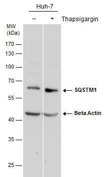 SQSTM1 Antibody (PA5-27247) in Western Blot