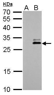 Kallikrein 7 Antibody (PA5-27252)