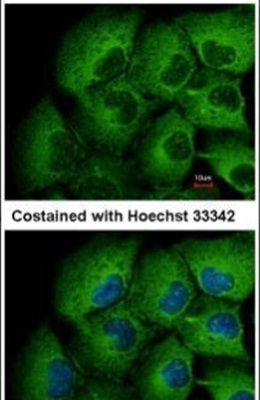 MMP12 Antibody (PA5-27254)