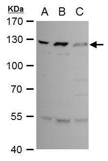 BCL11B Antibody (PA5-27260) in Western Blot