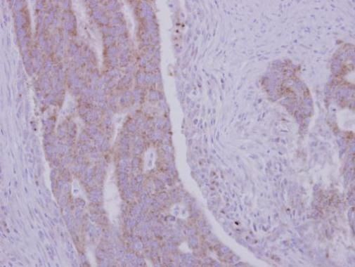 RRM1 Antibody (PA5-27263) in Immunohistochemistry (Paraffin)