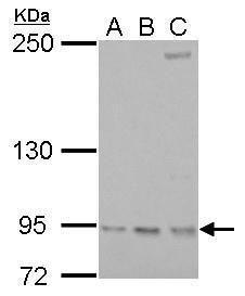 RRM1 Antibody (PA5-27263) in Western Blot