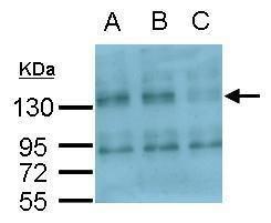 CD51 Antibody (PA5-27272) in Western Blot
