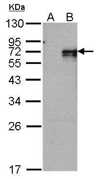 NR4A1 Antibody (PA5-27274) in Western Blot