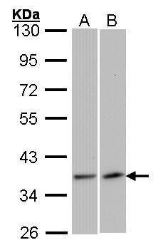 VEGFD Antibody (PA5-27276) in Western Blot