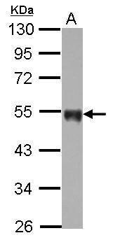 CD142 Antibody (PA5-27278) in Western Blot
