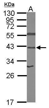 RPSA Antibody (PA5-27281) in Western Blot