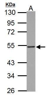 Thymidine Phosphorylase Antibody (PA5-27291) in Western Blot
