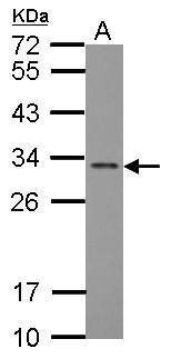 FGF13 Antibody (PA5-27302) in Western Blot