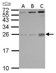 PGF Antibody (PA5-27303) in Western Blot