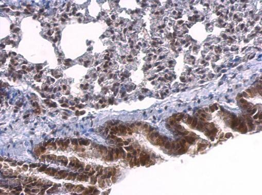 SRF Antibody (PA5-27307) in Immunohistochemistry (Paraffin)