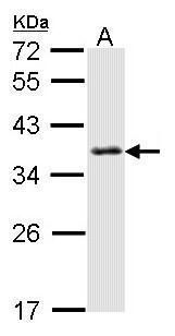 SMN Antibody (PA5-27309) in Western Blot
