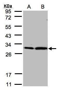 14-3-3 zeta Antibody (PA5-27317) in Western Blot