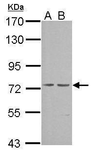 cGKI Antibody (PA5-27325) in Western Blot