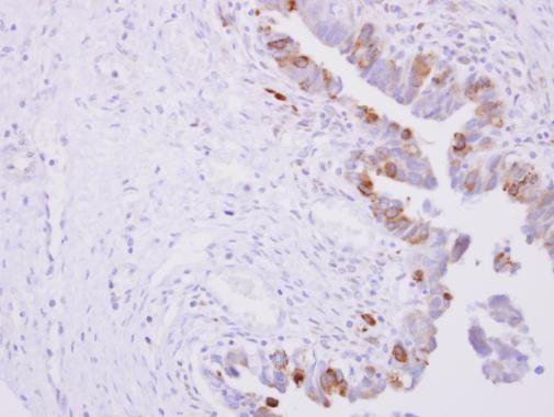 CYPOR Antibody (PA5-27326) in Immunohistochemistry (Paraffin)