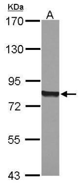 CYPOR Antibody (PA5-27328) in Western Blot
