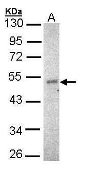 IKK gamma Antibody (PA5-27335) in Western Blot