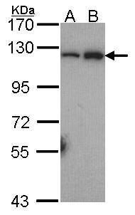 NFkB p52 Antibody (PA5-27340) in Western Blot