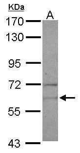 NARS Antibody (PA5-27341) in Western Blot