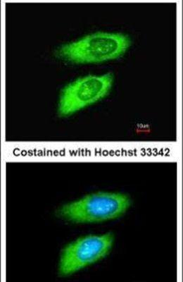 MIF Antibody (PA5-27343) in Immunofluorescence