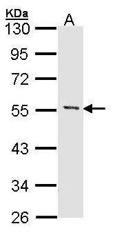MEF2A Antibody (PA5-27344) in Western Blot