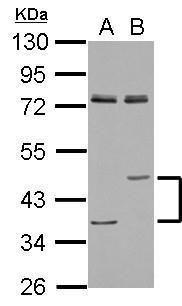 LIPA Antibody (PA5-27346) in Western Blot