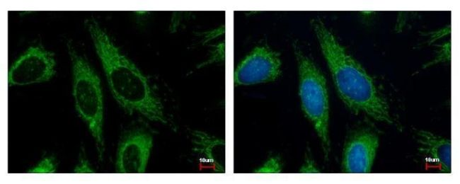 HADHA Antibody (PA5-27348)