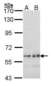 Fyn Antibody (PA5-27351) in Western Blot
