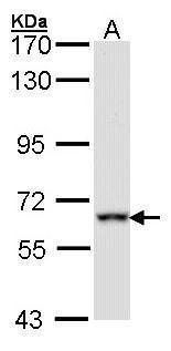 FMRP Antibody (PA5-27353) in Western Blot