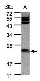 Ferritin Antibody (PA5-27357) in Western Blot