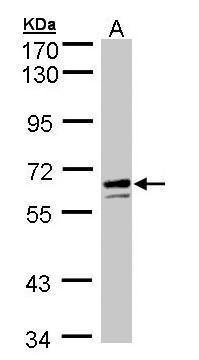 G6PD Antibody (PA5-27359) in Western Blot