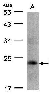 Growth Hormone Antibody (PA5-27360) in Western Blot