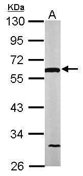 DLD Antibody (PA5-27367) in Western Blot