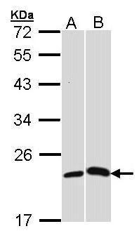 CRP Antibody (PA5-27374)
