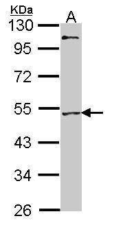 MEF2A Antibody (PA5-27380) in Western Blot