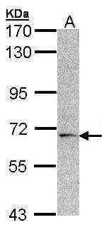 CHK2 Antibody (PA5-27383)