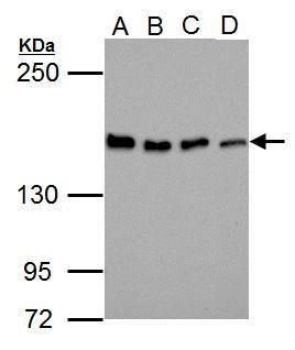 Blooms Syndrome Antibody (PA5-27384) in Western Blot