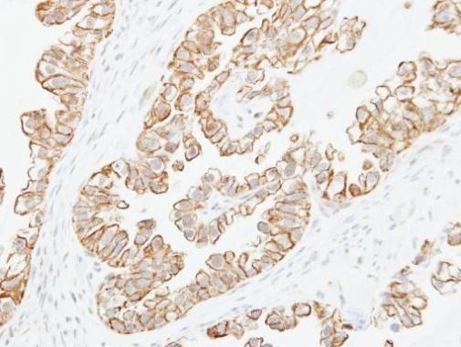 Adenylate Cyclase 2 Antibody (PA5-27396) in Immunohistochemistry (Paraffin)