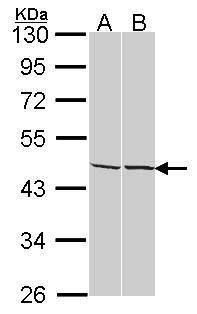 Adenosine Kinase Antibody (PA5-27399) in Western Blot