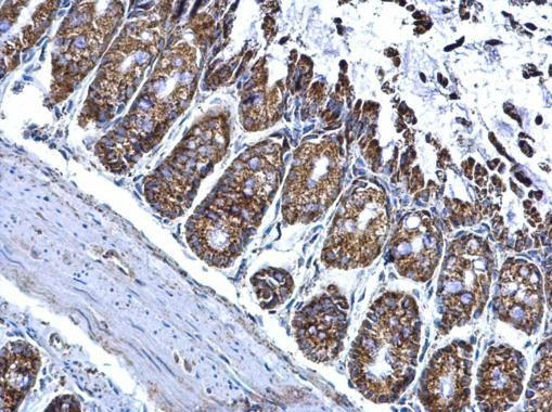 ALDH2 Antibody (PA5-27414) in Immunohistochemistry (Paraffin)