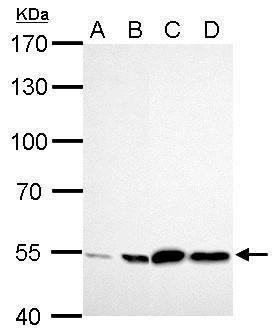 ALDH2 Antibody (PA5-27414) in Western Blot